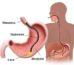 Биопсия желудка с помощью эндоскопии: показания и противопоказания
