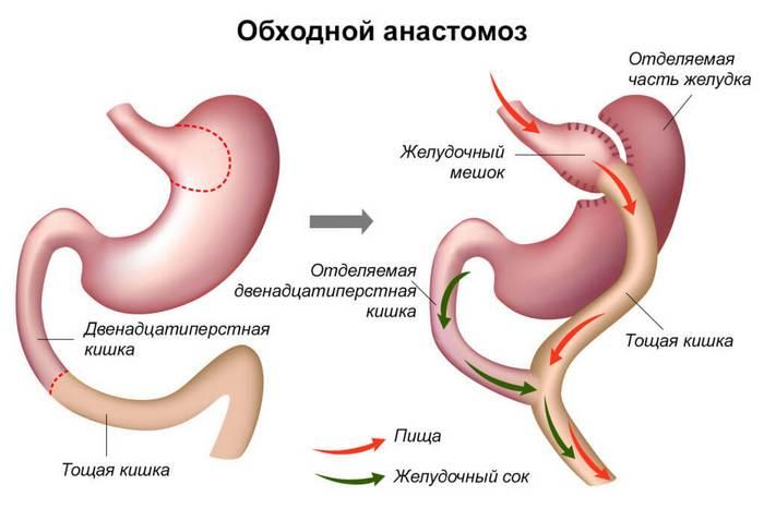 Анастомоз кишечника