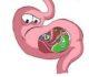 Как заставить работать ленивый кишечник