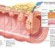 Симптомы опухоли в кишечнике, виды и стадии их развития