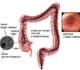 Как проводится колоноскопия кишечника, ее показания и противопоказания