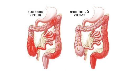 язвенный колит кишечника