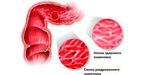стенки кишечника