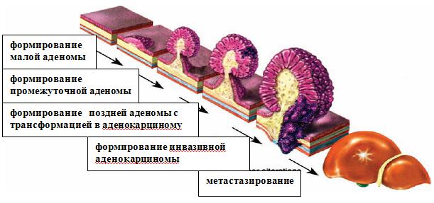 Стадии развития раковых образований