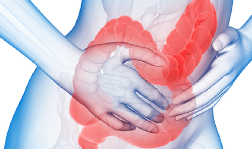 синдроме раздраженного кишечника