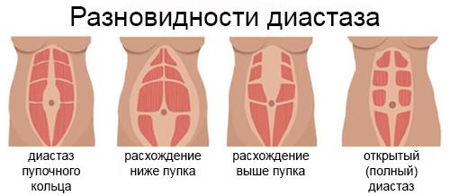 разновидности диастаза