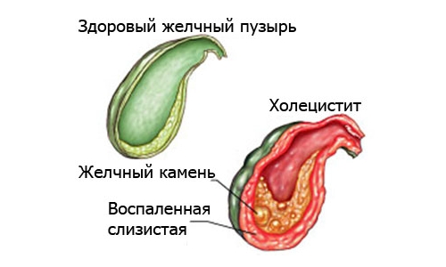 острый холецистит в желудке