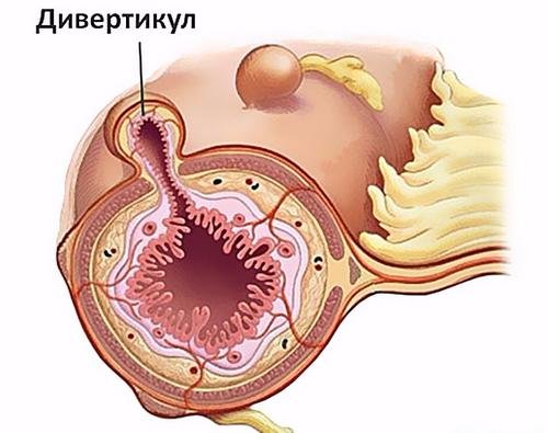 Дивертикулит в разрезе