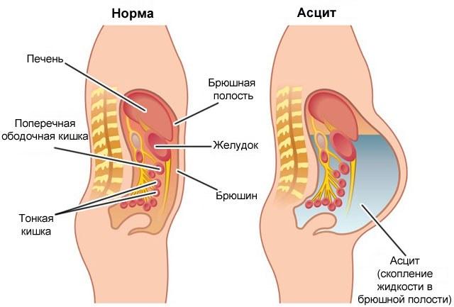 Схема водянки живота у человека