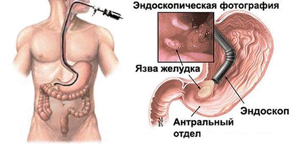 схема проведения гастроскопии желудка