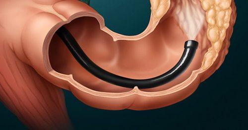 гастроскопия кишечника