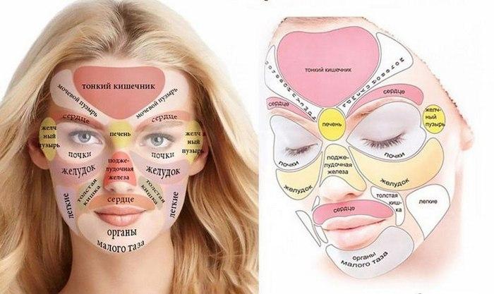 зоны проблем на лице