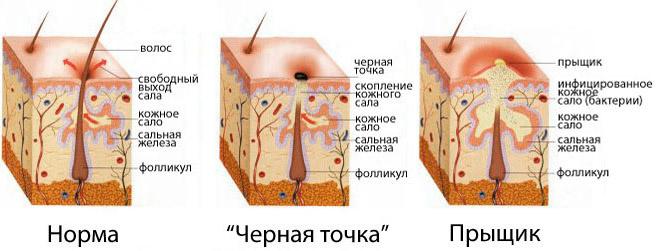 схема появления прыща в коже