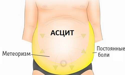 Асцит - водянка живота