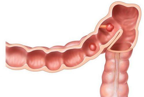новообразования кишечника