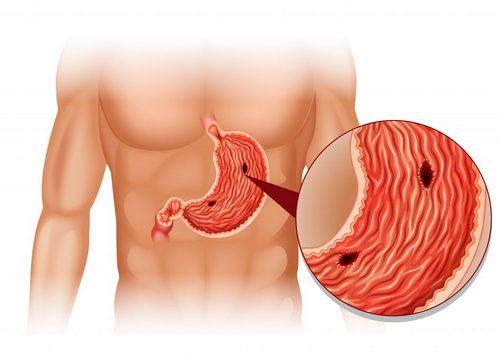 вид язвы в желудке
