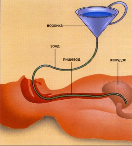 Как прочистить желудок в домашних условиях и кишечник 527