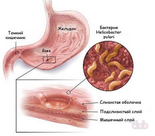 вид язвы желудка
