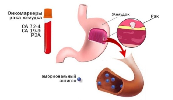 Онкомаркеры желудочно-кишечного тракта
