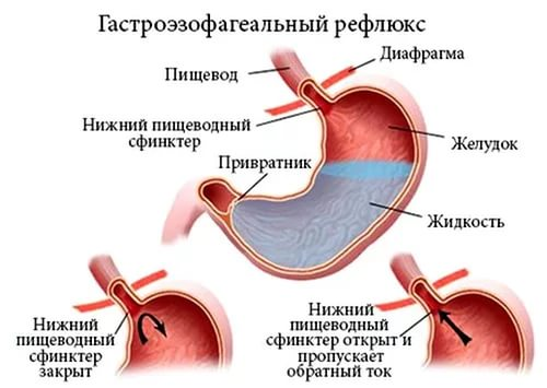 гастроэзофагеальный рефлюкс желудка