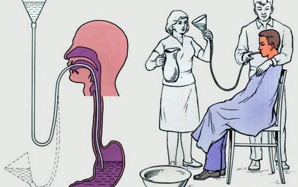 Процесс промывания желудка