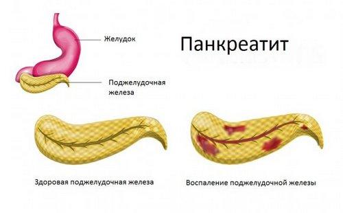 Панкреатит - схематичный вид