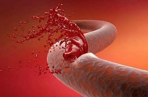 кровотечение в животе