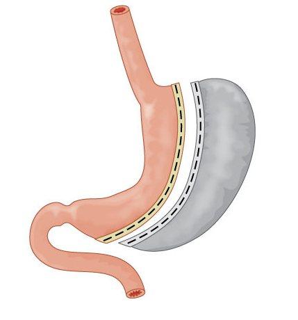 операция по обрезанию части желудка