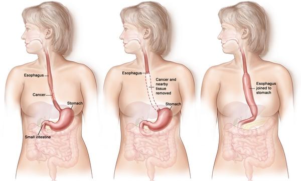 схематичное удаление желудка