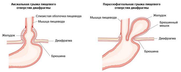 вид и структура грыжи пищевода