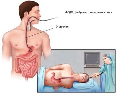 схема ФГС желудка
