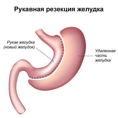 рукавная резекция желудка