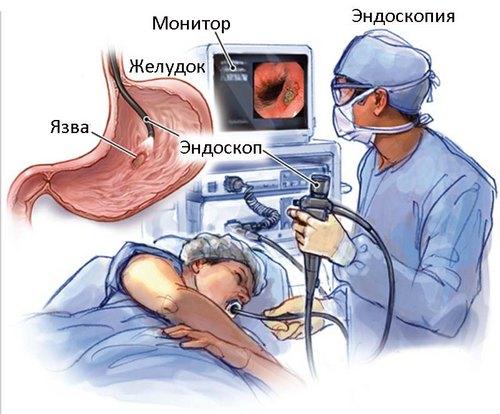 диагностика язвы