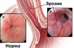 Причины воспаления пищевода, его симптомы и лечение