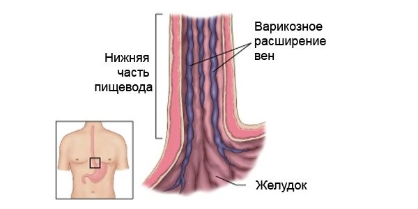 варикоз в пищеводе