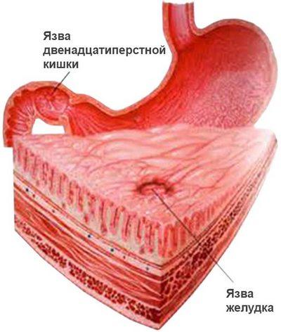 Язва желудка и двенадцатиперстной кишки