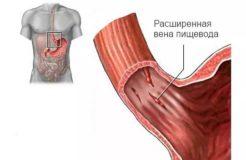 Причины варикозного расширения вен пищевода, их лечение