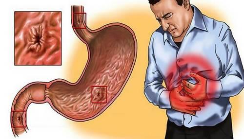 симптомы появления гастрита