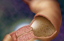 Стеноз привратника желудка: причины, симптомы и лечение