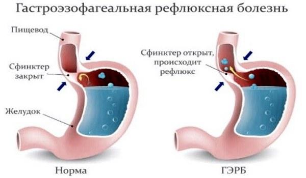 Гастроэзофагеальная болезнь в животе