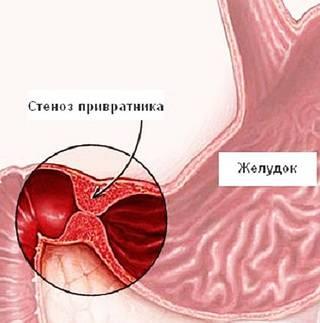 стеноз привратника желудка
