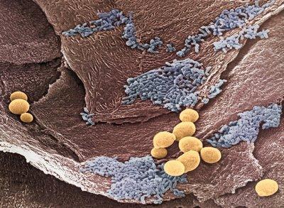 грибы кандиды в желудке