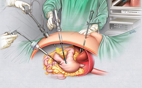 операция желудка