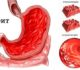 Список лекарств от гастрита желудка