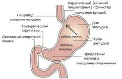 Воспаление привратника желудка, его диагностика и лечение