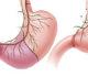 Виды и этапы резекции желудка, реабилитационный период