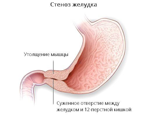 Стеноз желудка