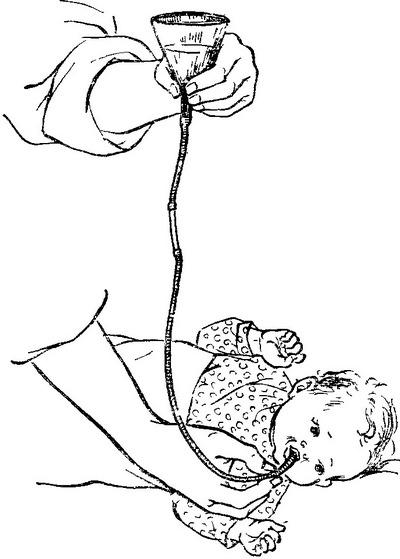 промывание желудка у ребенка