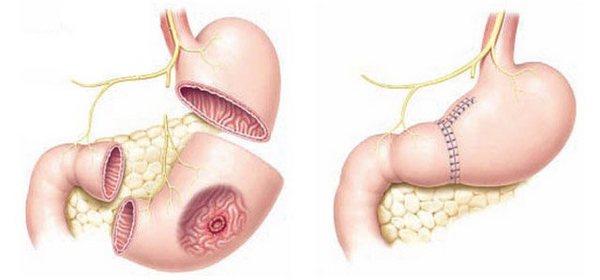частичное удаление желудка