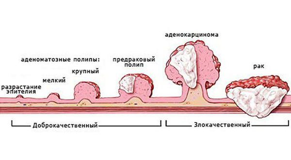 Виды аденокарциномы